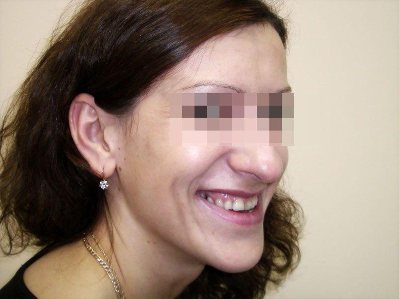 Остеотомия фото